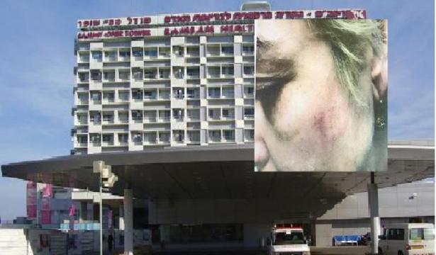 وقفة احتجاجية في مستشفى رمبام اثر الاعتداء على ممرضة  بالبصق والشتائم واللكم