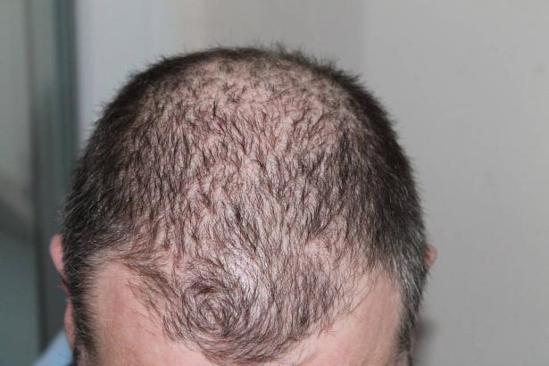 الثعلبة؛ تساقط الشعر..انواعها واسبابها