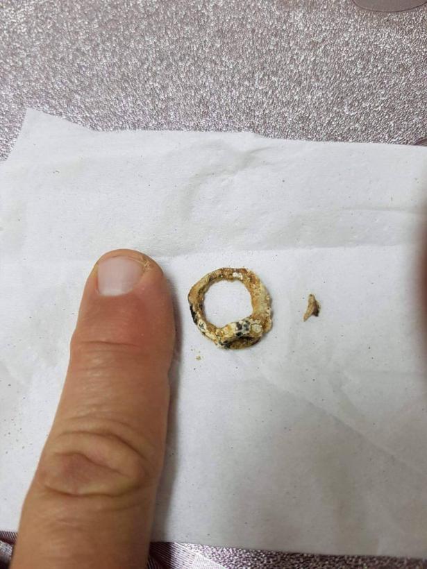 طمرة: إستخراج خاتم علق لمدة سنتين في أنف فتاه وسبب لها التلوث