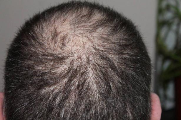 علاج طبيعي بسيط لتعزيز نمو الشعر
