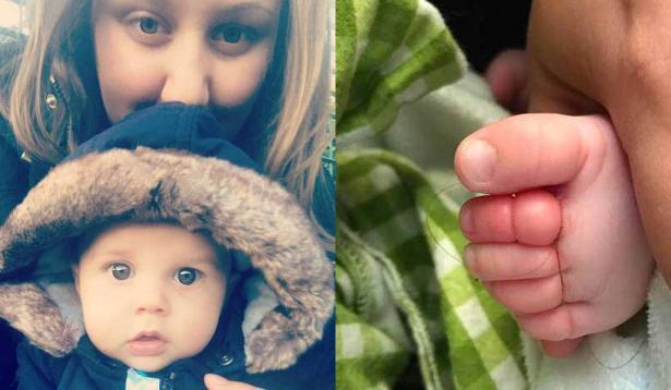طفل كاد يفقد 4 من اصابع القدم بسبب شعرة من والدته!