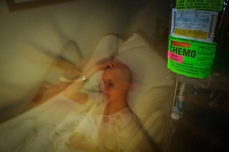 مضاعفات واعراض العلاج الكيميائي: كيف يمكن تخفيفها؟