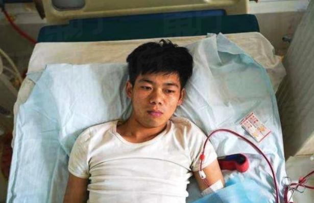 باع كليته لشراء آيباد وآيفون.. شاب صيني يصاب بإعاقة