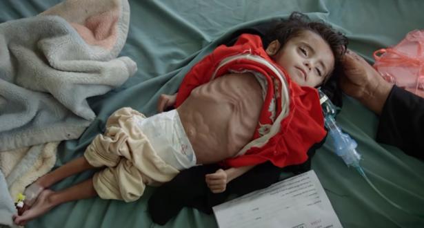 أكثر من 100 ألف رضيع يموتون سنوياً بسبب الحروب