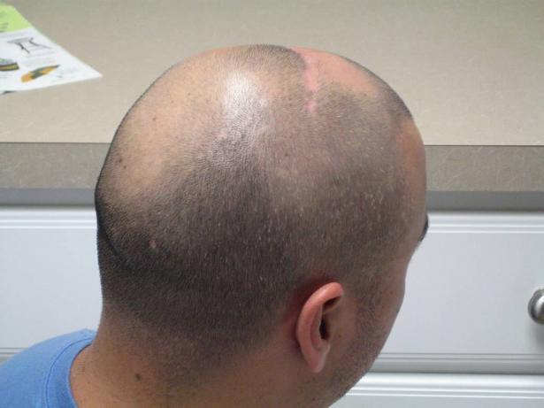 د. خالد اشقر يتحدث للشمس عن أسباب تساقط الشعر وكيفية معالجة ذلك