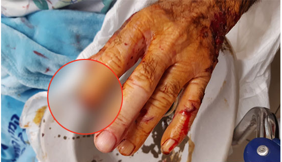 كلب مسعور يقطع اصبع مسن عربي في نهاريا