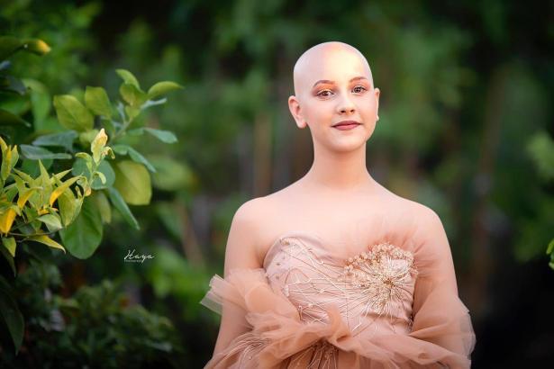 شابة تطلق مجموعتها من وحي المعاناة مع السرطان, ملك مهرة في حديث مع الشمس