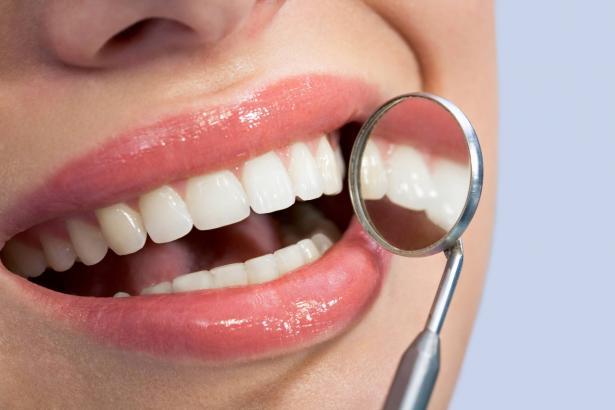 كل ما يجب ان تعرفه عن تبييض الأسنان!